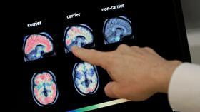 Medizin: Forscher testen vorbeugende Behandlung gegen Alzheimer