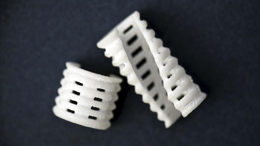 3D-Druck rettet das Leben von Kleinkindern