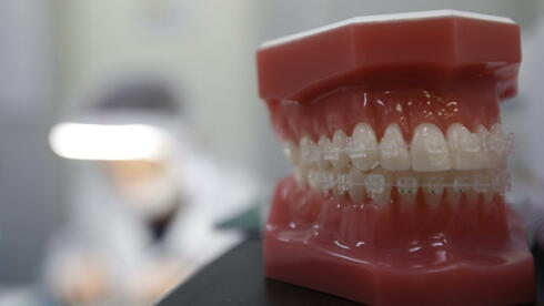 Die erste voll durchsichtige, festsitzende Zahnspange - Nanotechnologie macht sie möglich. Quelle: dpa